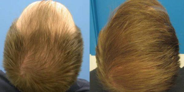 saç-ekimi-öncesi-sonrası-11