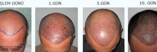 saç-ekimi-öncesi-sonrası-9